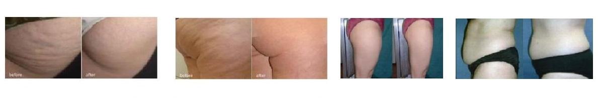 przed i po1