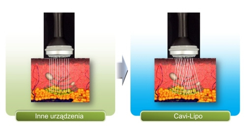 caviporownanie-3